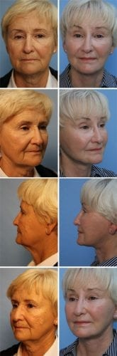 Facelift Before & After Patient 4