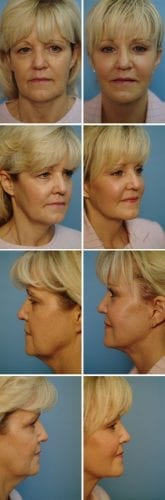 Facelift Before & After Patient 5