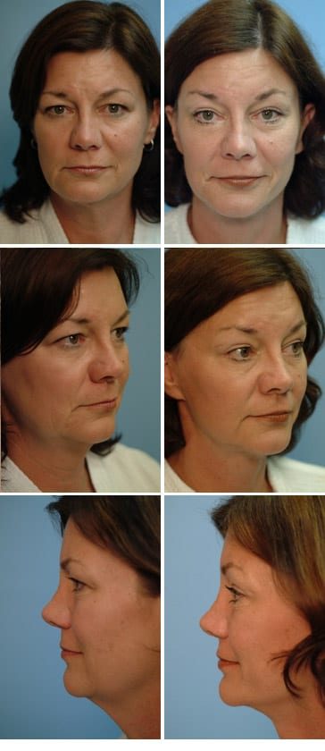 Eyelid Surgery Actual Patient Results