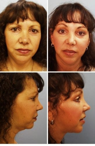 Facelift Before & After Patient 9
