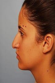https://www.rhinoplasty.org/wp-content/uploads/2015/12/Jennifer-2-copy.jpg