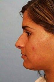 https://www.rhinoplasty.org/wp-content/uploads/2015/12/Layer-0-3-e1456856914833.jpg