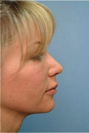 https://www.rhinoplasty.org/wp-content/uploads/2015/12/Layer-01-5.jpg