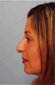 https://www.rhinoplasty.org/wp-content/uploads/2015/12/Layer-017-3.jpg