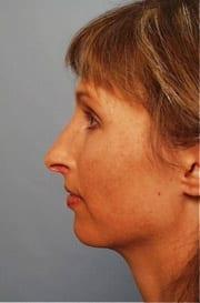 https://www.rhinoplasty.org/wp-content/uploads/2015/12/Layer-022-1-copy.jpg