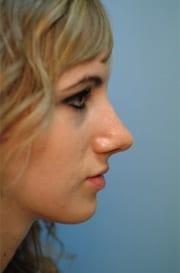 https://www.rhinoplasty.org/wp-content/uploads/2015/12/Layer-026-12-copy.jpg