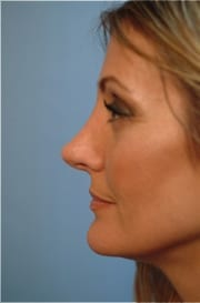 https://www.rhinoplasty.org/wp-content/uploads/2015/12/Layer-027-5-copy.jpg