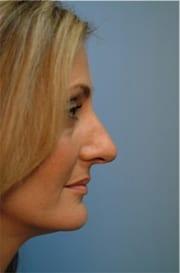 https://www.rhinoplasty.org/wp-content/uploads/2015/12/Layer-027-7-copy.jpg