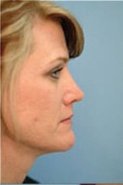 https://www.rhinoplasty.org/wp-content/uploads/2015/12/Layer-03-9-copy.jpg