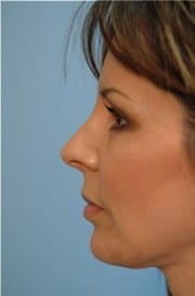 https://www.rhinoplasty.org/wp-content/uploads/2015/12/Layer-03-11-e1456857859597.jpg