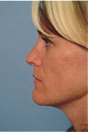 https://www.rhinoplasty.org/wp-content/uploads/2015/12/Layer-03-7-copy.jpg