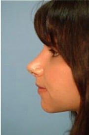 https://www.rhinoplasty.org/wp-content/uploads/2015/12/Layer-04-15-e1456858276279.jpg