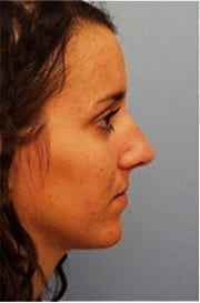 https://www.rhinoplasty.org/wp-content/uploads/2015/12/Layer-06-4-copy.jpg