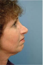 https://www.rhinoplasty.org/wp-content/uploads/2015/12/Layer-08-5-copy.jpg