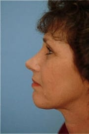https://www.rhinoplasty.org/wp-content/uploads/2015/12/Layer-08-7-copy.jpg