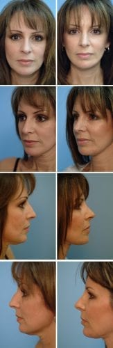 Facelift Before & After Patient 10