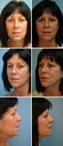Facelift Before & After Patient 11