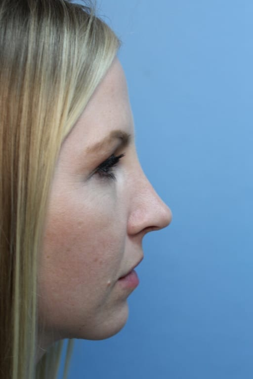 https://www.rhinoplasty.org/wp-content/uploads/2015/12/before3-38a.jpg