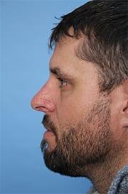 https://www.rhinoplasty.org/wp-content/uploads/2015/12/before-3-copy.jpg