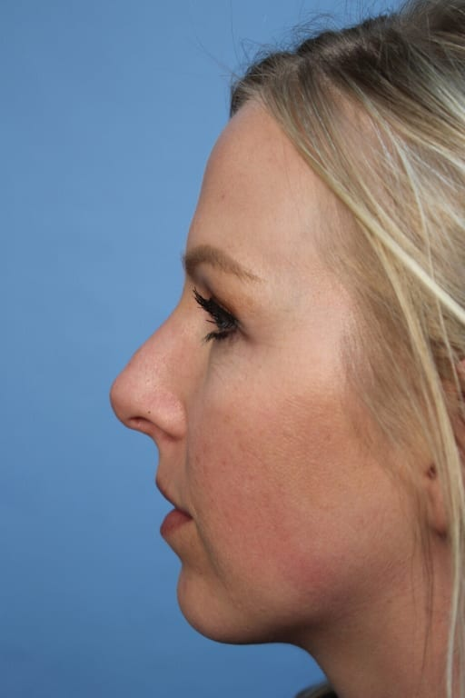 https://www.rhinoplasty.org/wp-content/uploads/2015/12/before2-38a.jpg