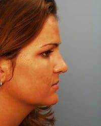 https://www.rhinoplasty.org/wp-content/uploads/2015/12/botox1_081.jpg