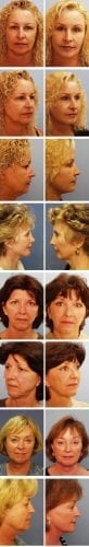 Facelift Before & After Patient 7