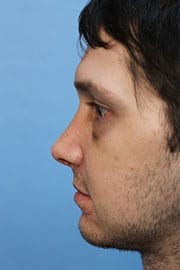 https://www.rhinoplasty.org/wp-content/uploads/2015/12/rhinoplasty-patient-04d-before.jpg