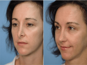 Things To Consider Before Revision Rhinoplasty Rhinoplasty Blog